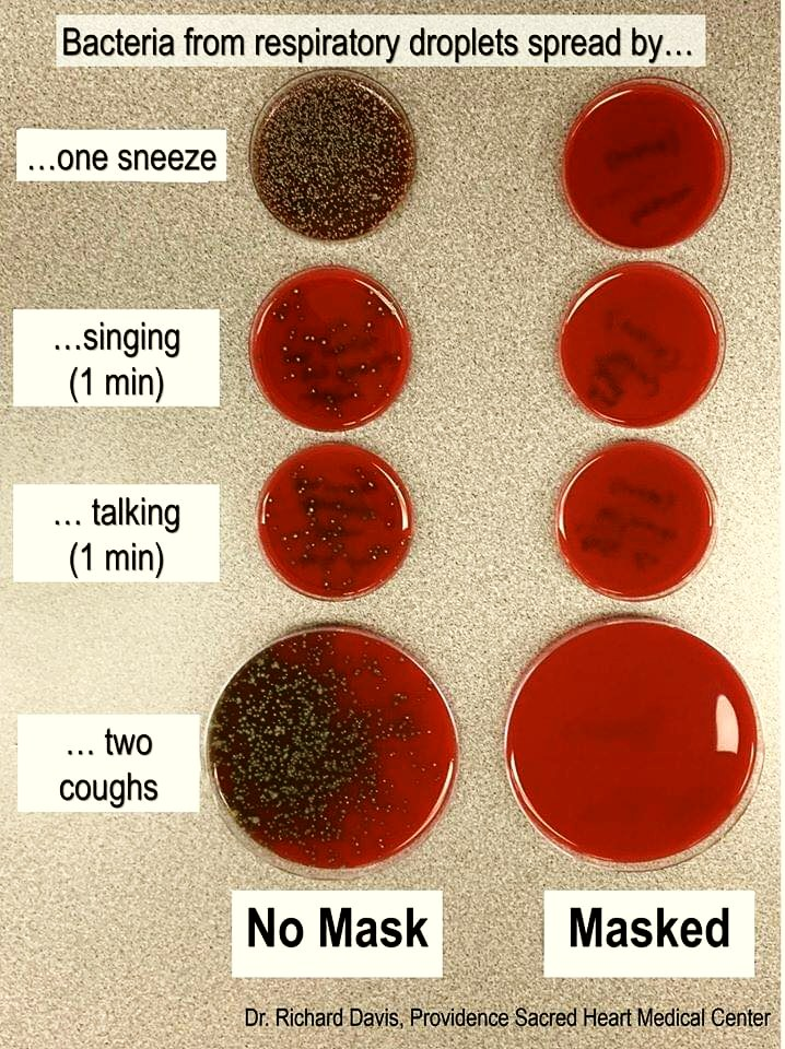singing versus talking into a petri dish